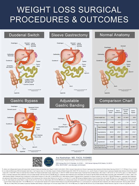 guide to types of weight loss surgery mayo clinic 17 things you should know about the duodenal switch ds