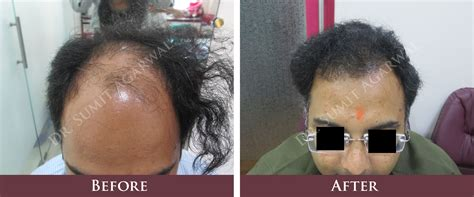 hair transplantation in mumbai reviews hair transplant before after harleys clinic mumbai