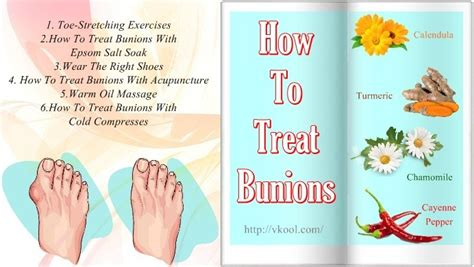 how to a without treats 10 ways how to treat bunions on without surgery at home