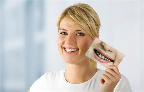 How To Find Information On For Free How To Find Free Or Low Cost Dental Care