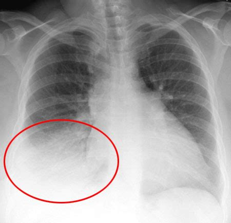 sle chest x report lupus sle badside manner