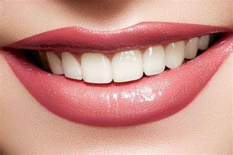 Brighten Up Your Smile With Sexysmile Lip Gloss by How To Get White Teeth Naturally Logicum