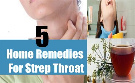 strep throat home remedies treatments and cure