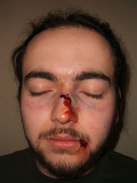 cracked nose broken nose by rlibby on deviantart