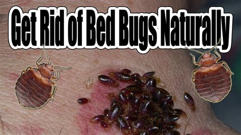 how do you get rid of bed bugs how to get rid of bed bugs naturally youtube