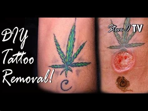 youtube tattoo diy removal steve o
