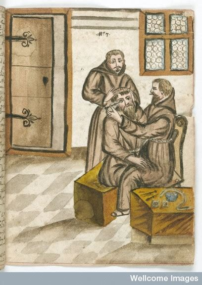 Couching Cataract by Couching Cataract Surgery A Brief History Of Cataract