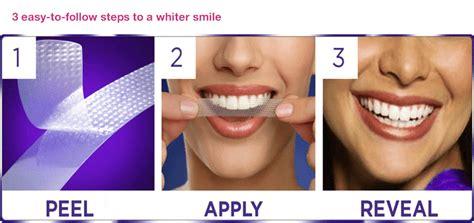 whitestrips teeth whitening cathedral dental