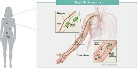 cancer diagram cancer types myriadpro