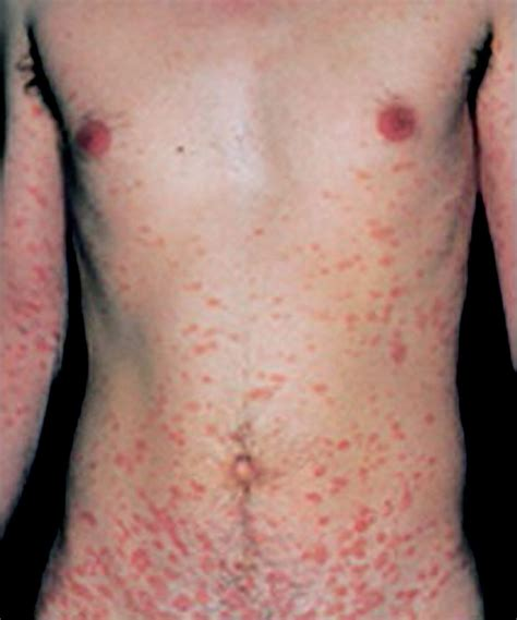 images of christmas tree disease rash christmas tree