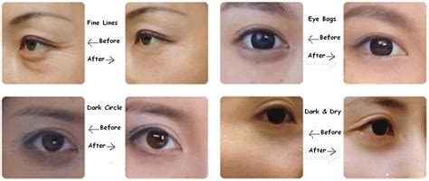 Masker Mata Collagen Eyelid Patch hasil collagen crystal eyelid patch masker mata penghilang