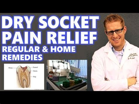 socket treatment home remedies for relief of your