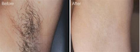 lotus beverly hills skin center laser hair removal hair removal day spa beverly hills beauty skin care