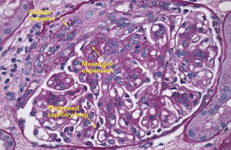 biopsy report sle cryoglobulinemia vasculitis report exles