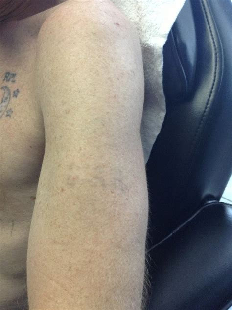 tattoo removal boston removal before and after photos at disappearing