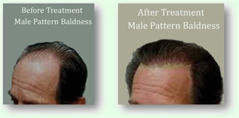 reasons for male pattern hair loss some women age 30 60 may notice a thinning of the hair
