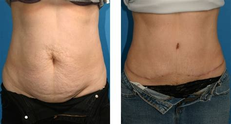 can i have a tummy tuck after c section gallery for gt abdominoplasty after c section
