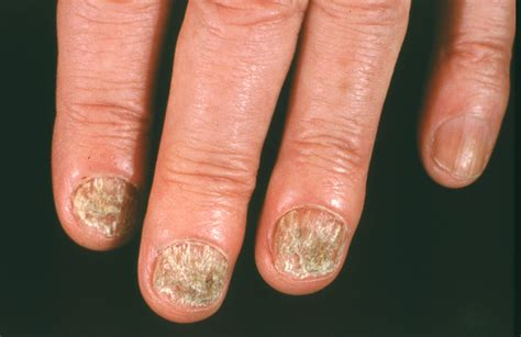 several toenails look skin color under them nail fungus american academy of dermatology