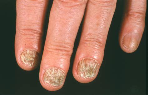 Nail Fungus Photos