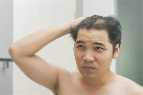 pattern hair loss male could a change in lifestyle reduce signs of male pattern