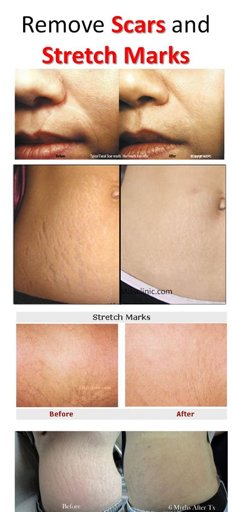 Hide Hair Scar Marks | 31 best images about health beauty tips on pinterest