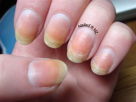 My Nails by Nail Stained My Nails How To Fix Them
