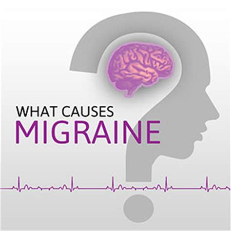 service for migraines what causes migraines driverlayer search engine