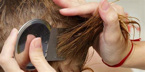 Sisir Kutu inilah penyebab munculnya kutu rambut