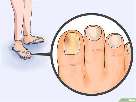 imagenes de uñas con onicomicosis c 243 mo eliminar los hongos de las u 241 as de los pies