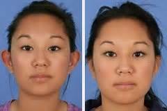 chirurgie plastique des oreilles