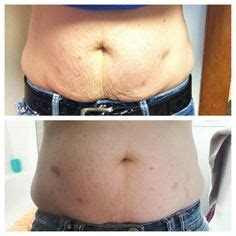Back To Work After C Section by It Works By Burke Check Out This Website For Your