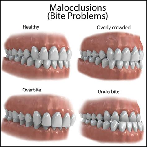 what is my up does malocclusion matter and maxillofacial surgery