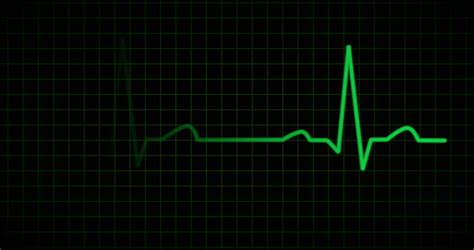 heart monitor pattern hd ecg ekg curve a typical ecg tracing of a normal