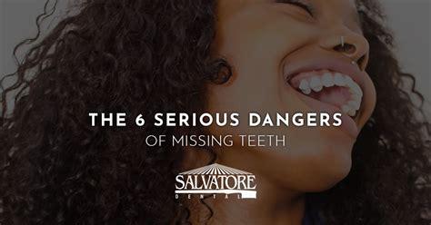 dentist malta    dangers  missing teeth