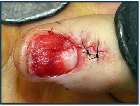 nail bed laceration nail injury specialist clinic singapore sports