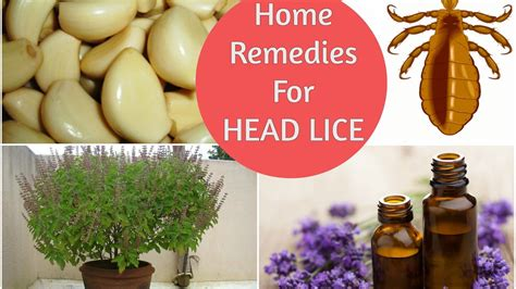 top 5 home remedies to get rid of lice nits
