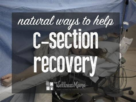 how long is the recovery for c section 1000 ideas about c section exercise on pinterest post c
