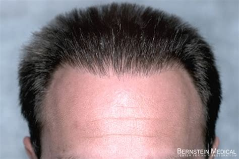 bad hair transplants hair transplant photos patient bdl bernstein medical