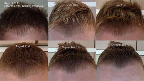 rogaine success photos propecia shedding hairline
