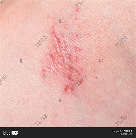 human skin stock photo 169 chaoss 1695911 wound on human skin image photo bigstock