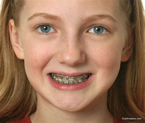 with braces 60 photos of teenagers with braces robweigner s