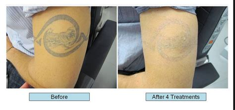 how many treatments for tattoo removal why does removal cost so much collection