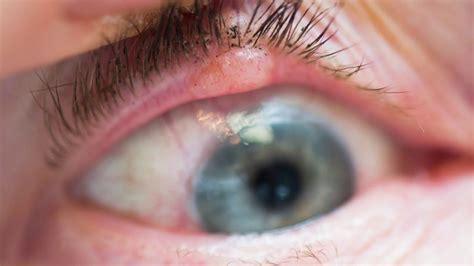 eyelid tumor eyelid skin cancer