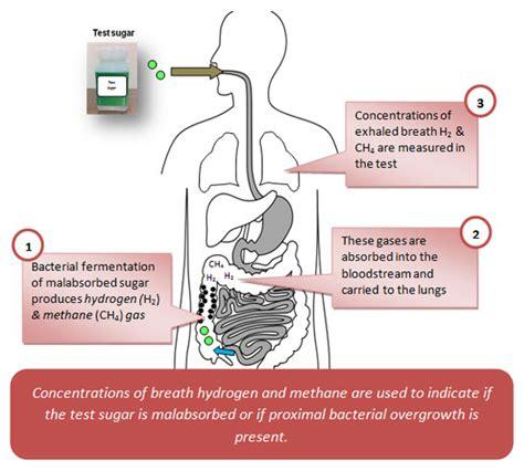 breath test what is hydrogen methane breath testing