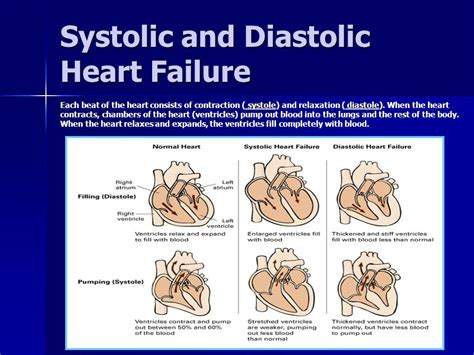 weight management meaning meaning of diastolic and systolic weight loss programs
