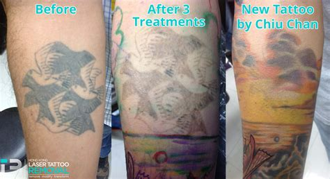 laser tattoo removal results results hong kong laser removal clinic