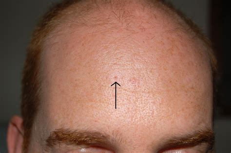pores of color extracting keratin plugs hardened sebum rosacea