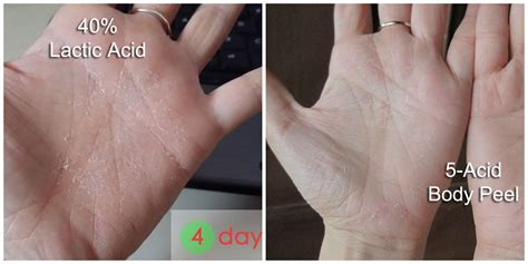10 glycolic acid peel side effects glycolic acid before and after pictures to pin on