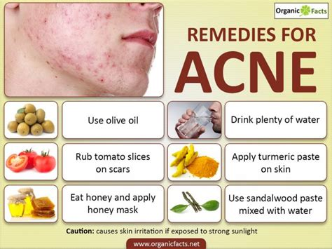 top three homeopathic remedies for acne homeopathic acne 16 effective ways to remove acne scars organic facts