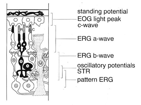 pattern dystrophy eog glia pictures